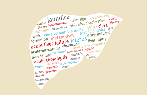 Mistakes In Acute Jaundice And How To Avoid Them