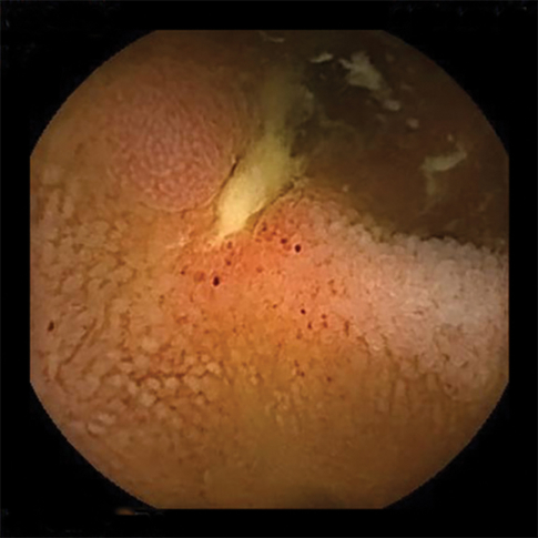 Mistakes in capsule endoscopy and how to avoid them